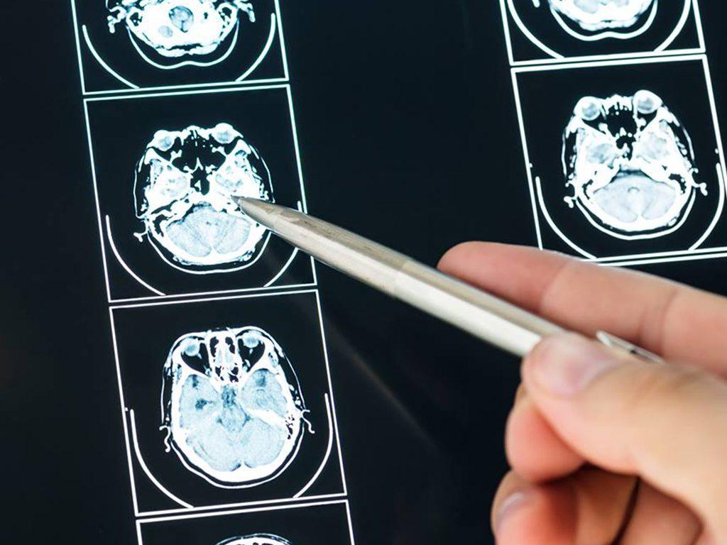 Neurologia Neurolog Avimed